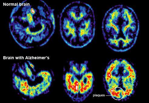 Az Alzheimer-kór tünetei CT felvételen